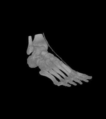 Displaying Medical Imagery in Voxler 3